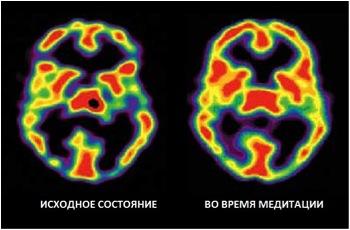 Два скана мозга автора исследования: базовое состояние и во время медитации. На томограмме хорошо видна метаболическая активность мозга: красный — наиболее активные области, черный — неактивные.