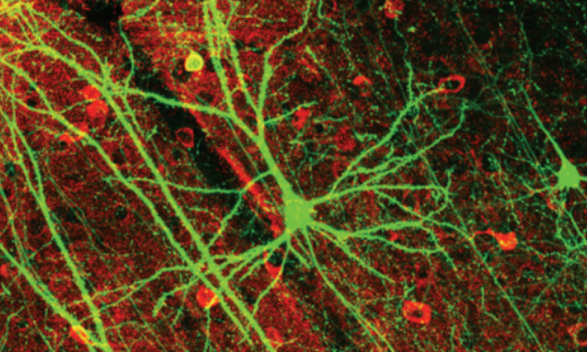 neuron-siegel